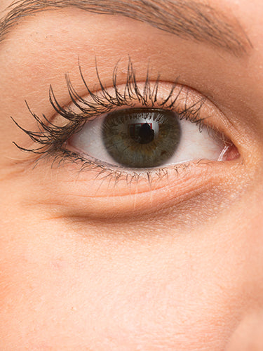 7 Effective Home Remedies For Puffy Eyes