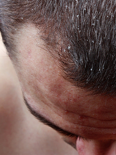 7 Natural Tips to Reduce Dandruff And Hair Fall Issues