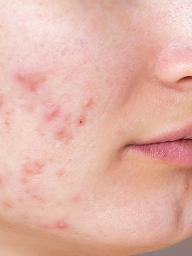 8 Easy Tips To Remove Pimple Fast