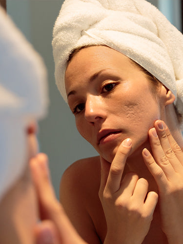 Acne Scar Treatments at Home