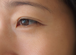 C15 EAA Serum before after