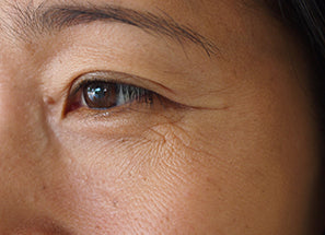 C15 EAA Serum reequil before after