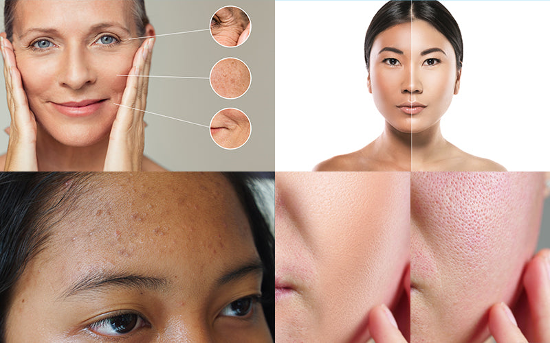 At What Age Should You Start Using Retinol To Prevent Skin Aging?