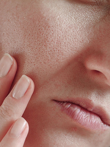 Best Tips To Minimize Pores On Face