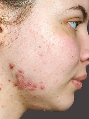 Best Tips To Stop Breakouts And Pimples