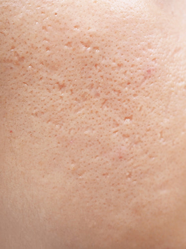 Best Ways To Get Rid Of Acne Scars Naturally