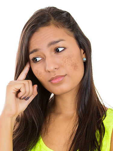 Causes And Treatment Of  Melasma