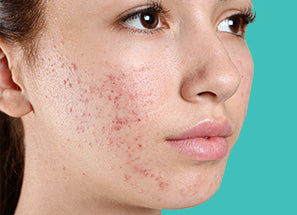 Pitstop Gel For Acne Scars & Pits Removal before after