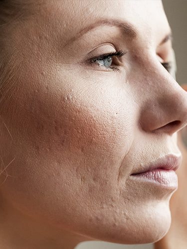 Difference Between Large Pores And Acne Scars