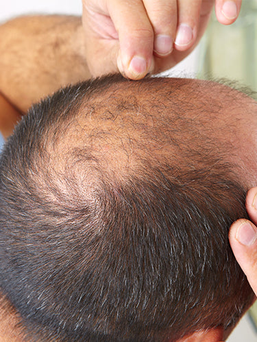 Different Types Of Hair Loss and Ways To Treat Them