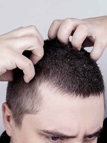 Effective Ways To Treat Itchy Scalp In Winters