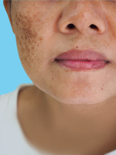 3 Startling Things I wish I knew About Hyperpigmentation