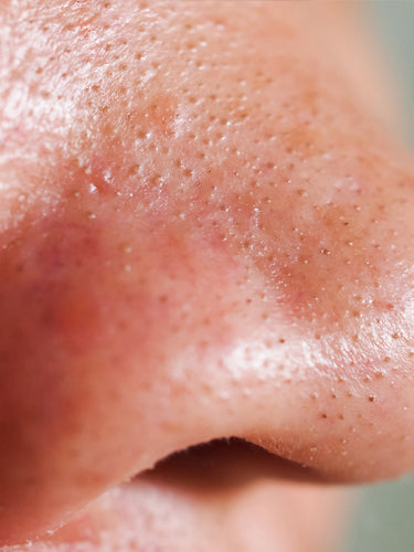 Facts About Blackheads