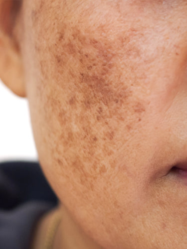 Home Remedies for Pigmentation on Face