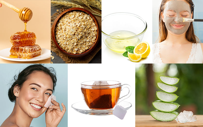Home remedies for oily and acne prone skin