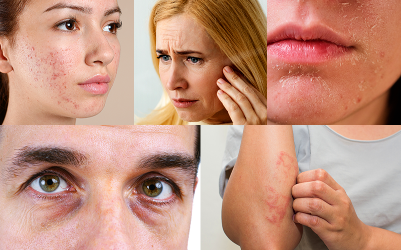 How Stress Affects Your Skin?