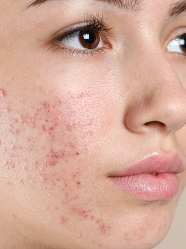 How To Get Rid Of Old Acne Scars Naturally