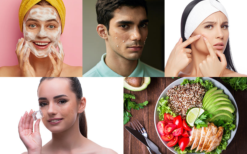 5 Effective ways to get rid of pimples fast