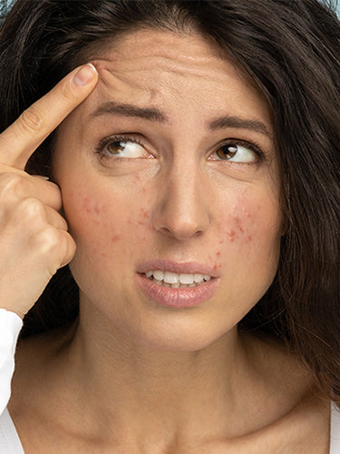 A Top Dermatologist's Secret Skincare Tips That Remove Acne In 4 Weeks