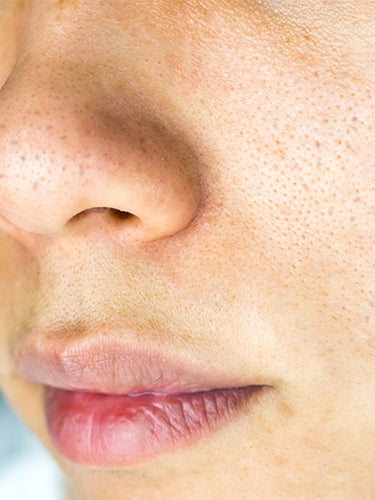 How To Reduce Pores On Face