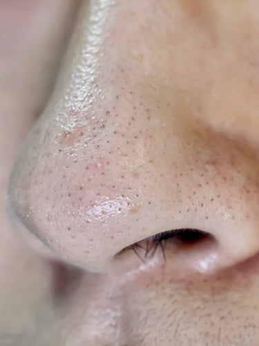 How to Remove Blackheads and Minimize Pores