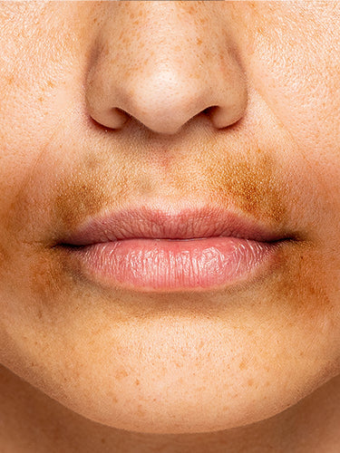 How To Get Rid Of Dark Patches Around Mouth?