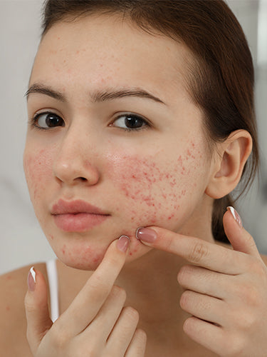 Is Your Skin Purging Or Breaking Out?