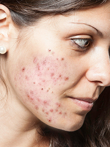 Know The Link Between Acne And Diet