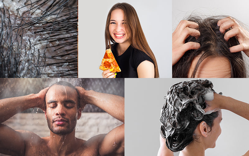 Reason Why Dandruff Gets Worse During Winters