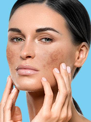Licorice : One Stop Solution For Pigmentation