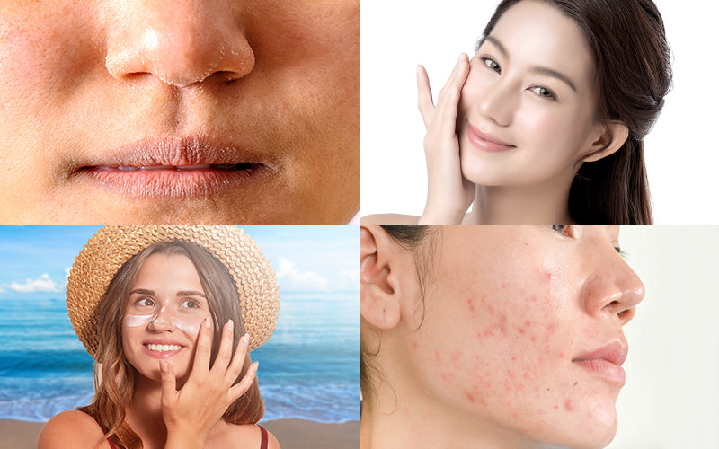 Licorice: One Stop Solution For Pigmentation