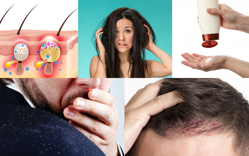 Top 5 Reasons Behind Pimples On Scalp