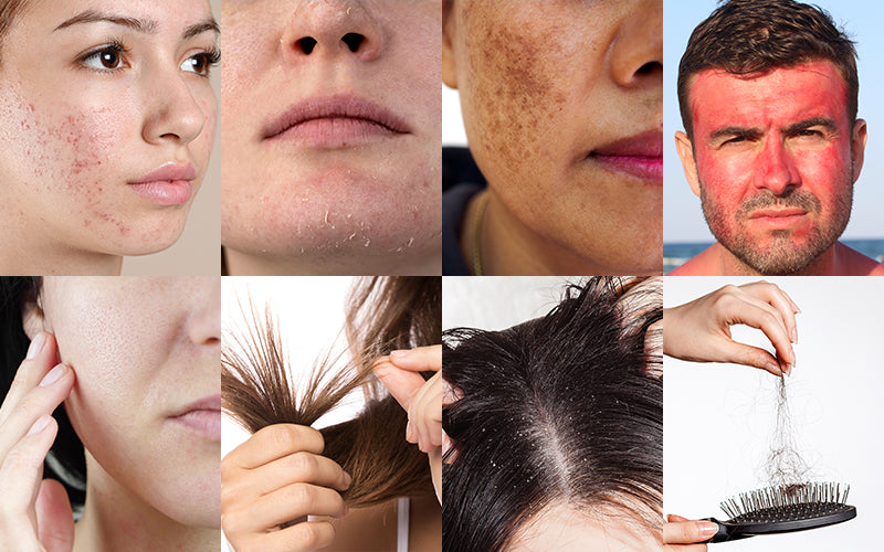Benefit Of Topical Treatments For Skin And Hair Concerns