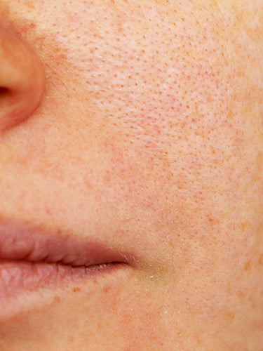Top 7 Home Remedies For Open Pores