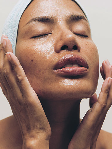 Top 7 Natural Moisturizers For Oily Skin