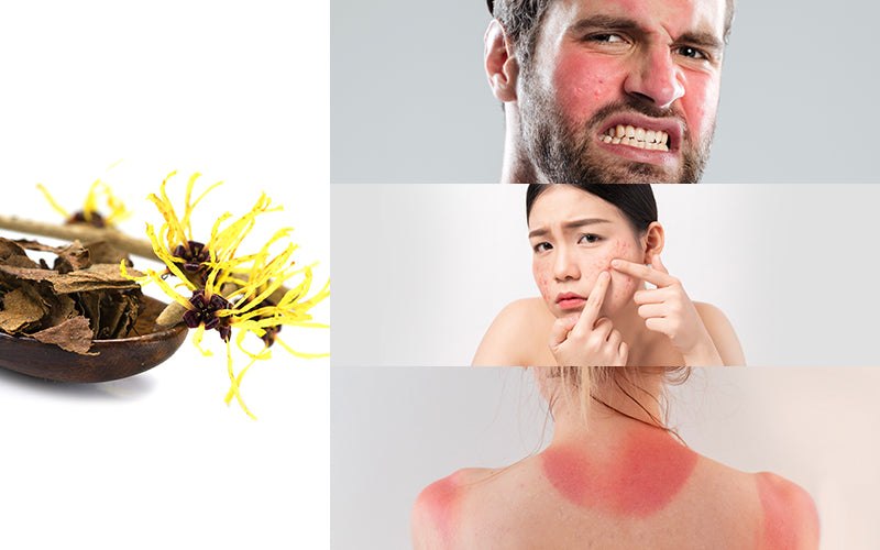 Top Benefits Of Witch Hazel For Skin