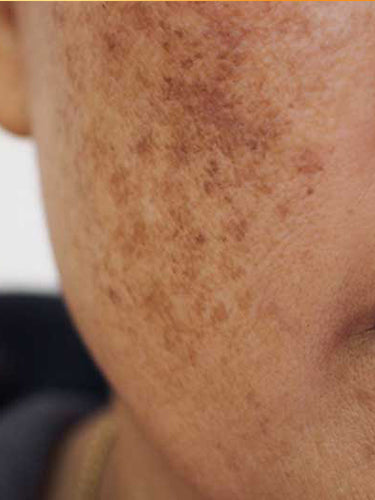Uneven Skin Tone: Causes and Preventive Measures