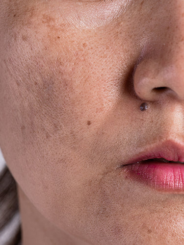 What Are The Causes Of Blemishes
