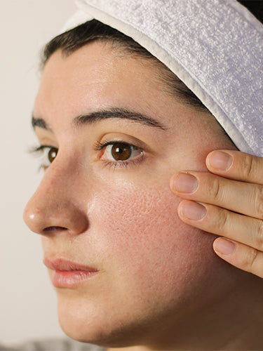 What Causes Large Pores And How You Can Reduce Them