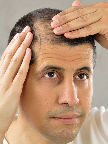 What Is The Role Of DHT In Hair Loss?