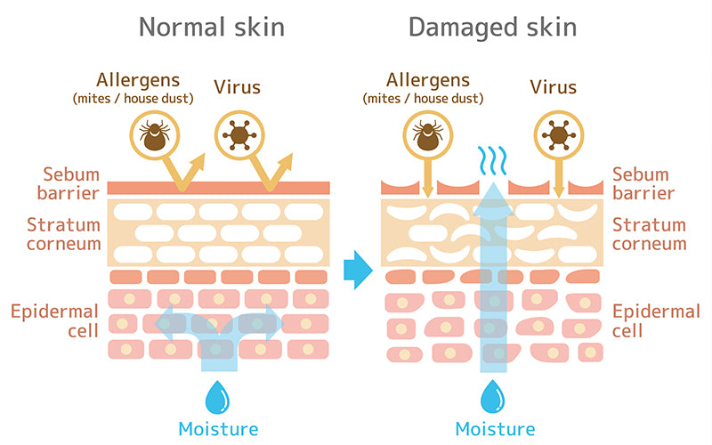 What Is the Skin's Moisture Barrier?