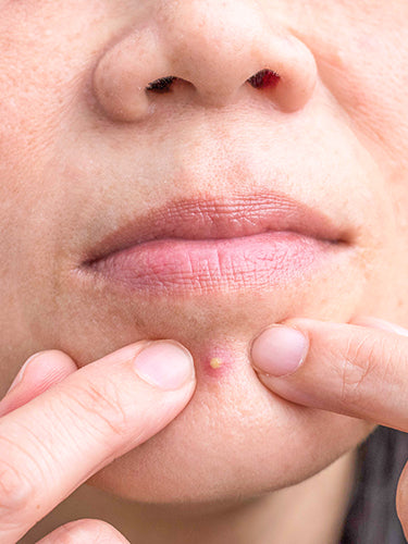 What To Do After You Pop A Pimple