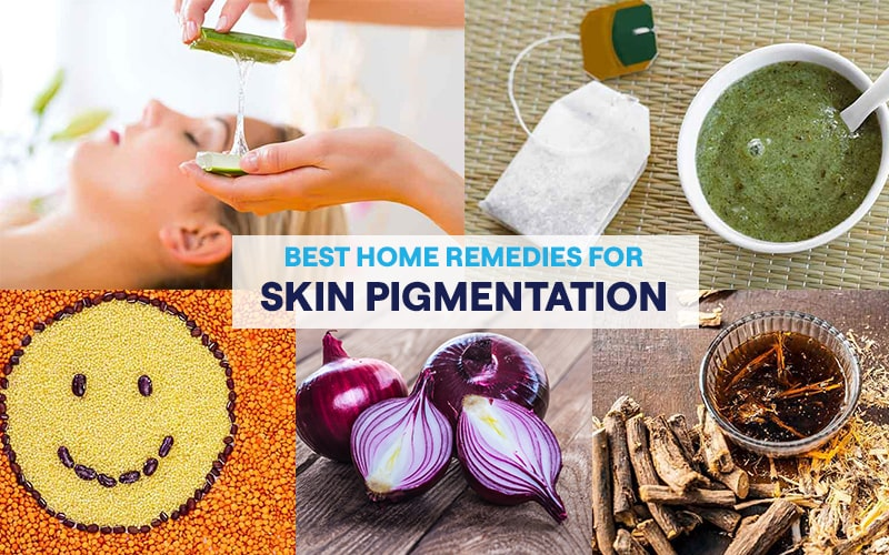 What are the best home remedies for skin pigmentation