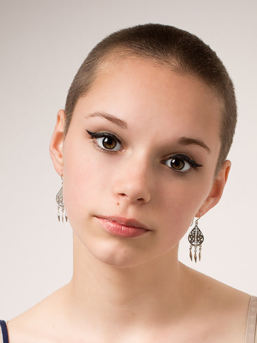 What causes baldness in teenagers?
