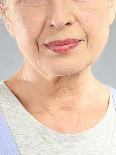 Why are wrinkles caused?