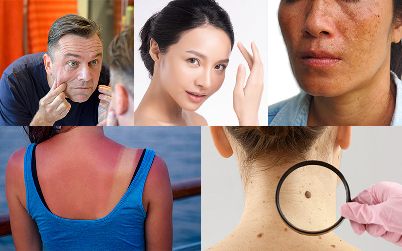 5 Reason Why Sunscreen Is Important?