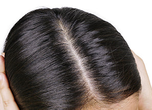 reequil dandruff treatment bundle before after