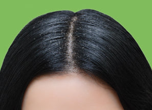 Anti dandruff shampoo Reequil before after