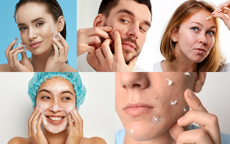 Tips to heal a popped pimple