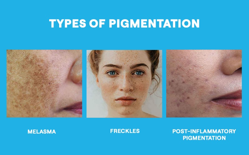 What are the types of pigmentation that one can get?